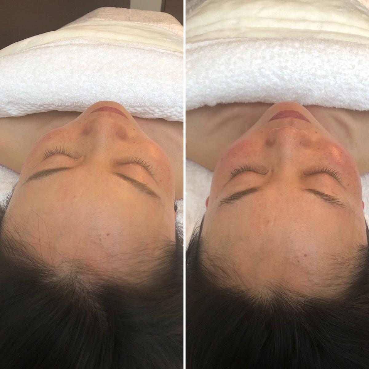 1回の施術でお顔の傾きと歪みが改善!before/after写真!