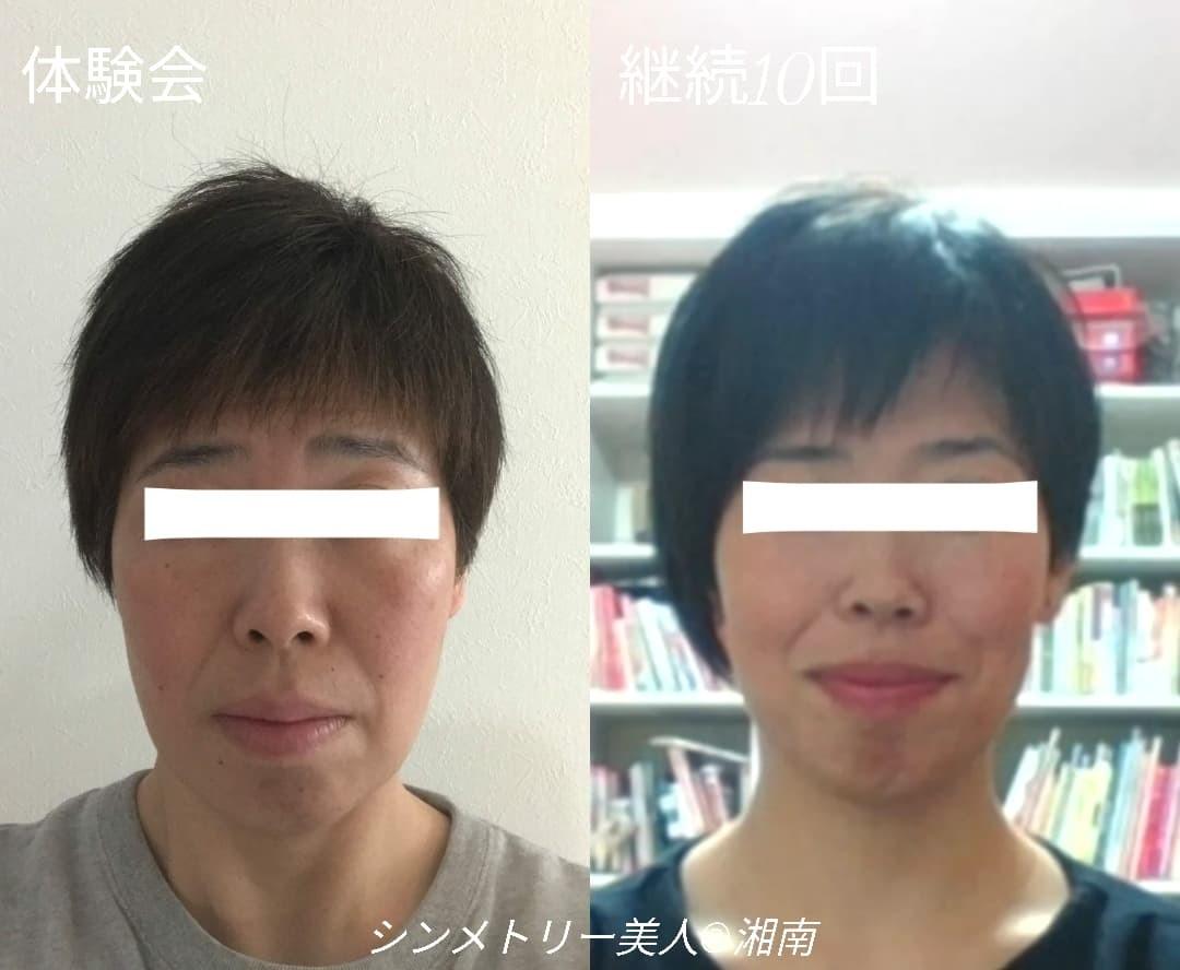 卒業生ビフォーアフター!シンメトリー美人の極意!!