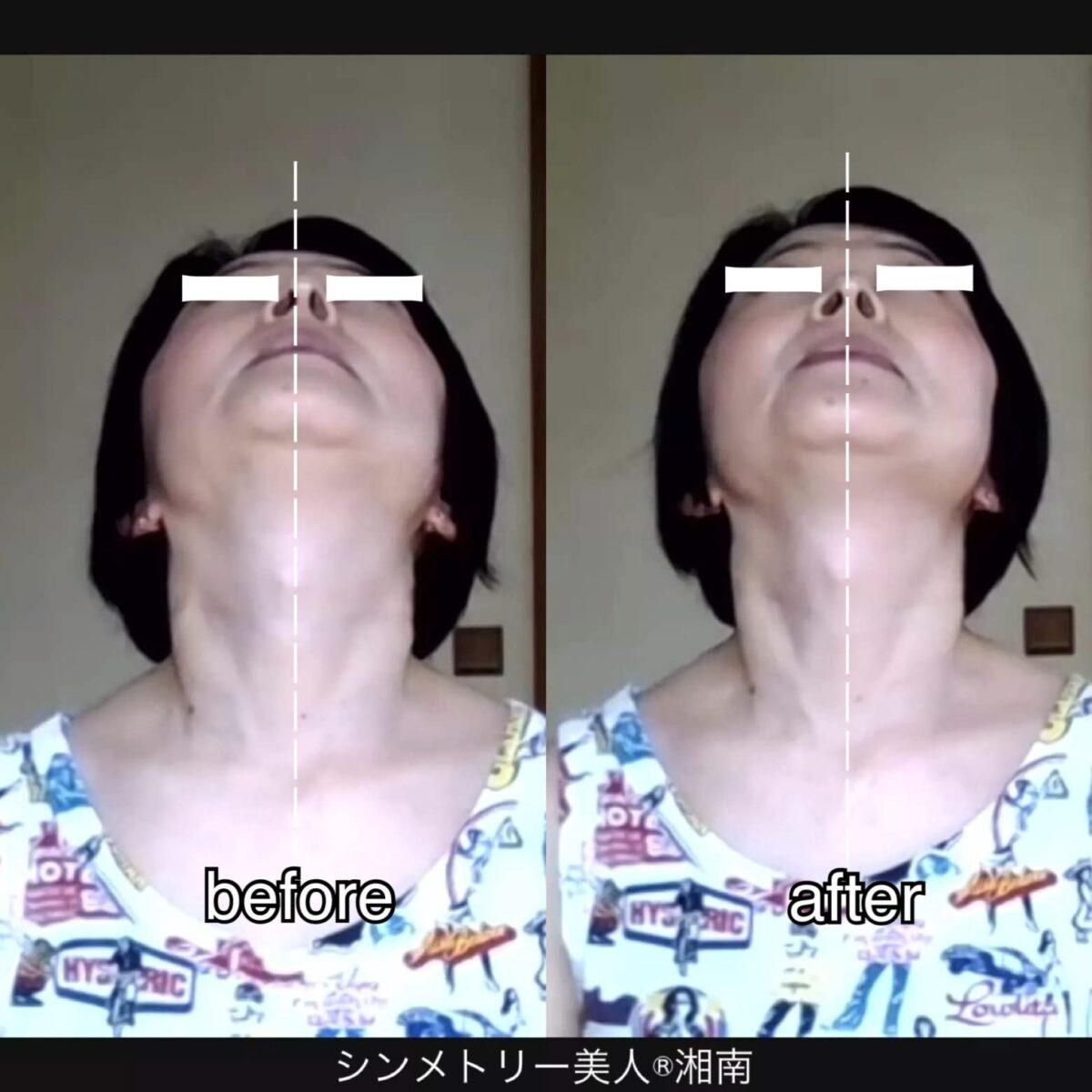 気になるアゴ下から首のたるみを解消して「老け見え」予防。